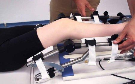 Тренажеры для восстановления суставов после травмы.